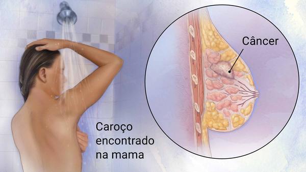 Mamografia em Curitiba: Diagnóstico e Prevenção Contra o Câncer de Mama