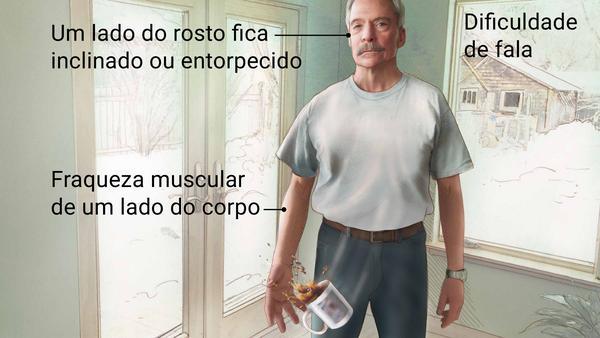 Neurologista em Curitiba: Sintomas do AVC (Acidente Vascular Cerebral)
