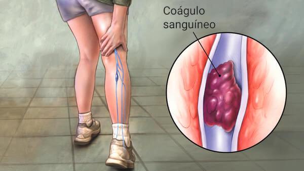 Angiologista em Curitiba: A imagem mostra uma pessoa andando, levando a mão à parte anterior do joelho, enquanto em azul evidenciam-se suas veias na região da panturrilha. Por meio de zoom nelas, mostra-se, com indicação de legenda, um Coágulo Sanguíneo obstruindo uma das veias.