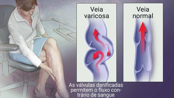 """Angiologista em Curitiba: A imagem mostra, em sua metade esquerda, uma mulher sentada, de pernas cruzadas, enquanto leva uma das mãos até sua panturrilha esquerda. Estão destacadas e visíveis por toda esta perna as veias da mulher, evidenciando assim a presença de Varizes. Na metade direita da imagem, existe um comparativo entre uma veia normal e uma veia variciosa, com um pequeno texto que diz: """"As válvulas danificadas permitem o fluxo contínuo de sangue""""."""