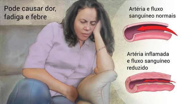 """Angiologista em Curitiba: A imagem mostra uma mulher no sofá de causa, apoiando o rosto sobre a palma esquerda, com expressão de dor, enquanto com a outra mão parece comprimir um dos lados da barriga. Na Legenda do canto superior esquerdo lê-se: """"Pode causar dor, fadiga e febre"""", enquanto o lado direito mostra imagens do que seriam uma artéria e fluxo sanguíneo normais em comparação com uma artéria inflamada com fluxo sanguíneo reduzido."""