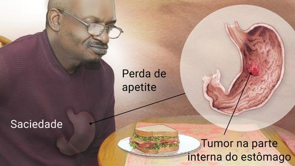 """Oncologista em Curitiba: A imagem mostra um homem adulto, sentado à mesa com um sanduíche em sua frente. No homem é possível visualizar uma representação de seu estômago, com a escrita """"Saciedade"""" ao lado. A partir da representação do órgão se origina uma linha preta, e acima dela está escrito """"Perda de Apetite"""". A linha conecta a representação de estômago presente no corpo do homem com um painel em formato de círculo, onde dentro dele temos a visualização interna do estômago, com uma inflamação em tons de vermelho, cuja legenda diz """"Tumor na parte interna do estômago""""."""