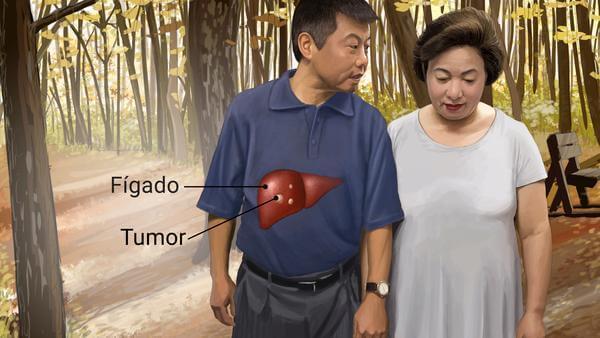 Oncologista em Curitiba: A imagem mostra um casal andando juntos, aparentemente de mãos dadas. No homem, é possível visualizar em sua região abdominal a representação de seu fígado, afetado pela presença de um tumor. Tanto do órgão quanto do tumor saem linhas pretas que os ligam às determinadas legendas.