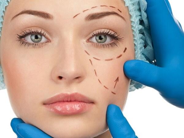 Cirurgião Plástico em Curitiba: A imagem mostra o rosto de uma paciente sendo preparado para uma cirurgia. Onde, o cirurgião responsável está realizando marcações na pele da paciente para ajudá-lo a se orientar durante o procedimento.