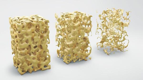 Densitometria Óssea em Curitiba: Imagem mostra 3 estágios de um osso cada vez mais poroso