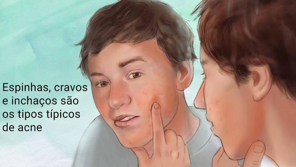 Dermatologista em Curitiba: A ACNE tem tratamento e pode ser controlada