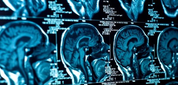 Diagnóstico por Imagem em Curitiba: A imagem mostra uma sequência de resultados de uma ressonância magnética feita no crânio de um paciente.