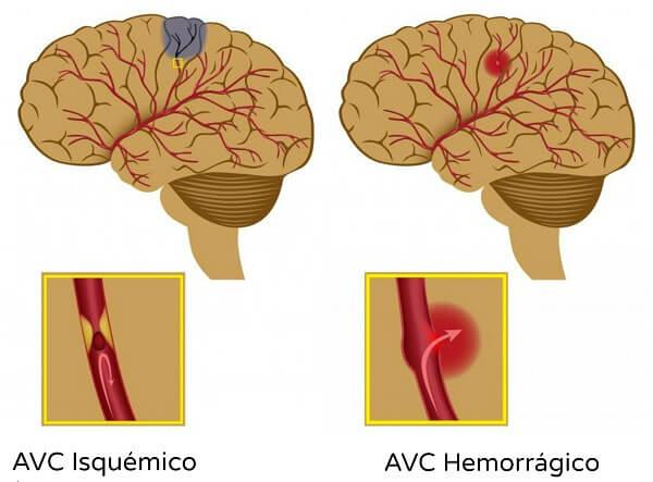 Geriatra em Curitiba: A imagem mostra a representação de dois cérebros, o direito com uma região destacada em azul, com um quadrado abaixo de sí, no qual está a representação de como se dá o AVC Isquémico, enquanto à direita, o cérebro possuí uma região destacada em vermelho, e no quadrado abaixo, a representação de um AVC Hemorrágico.