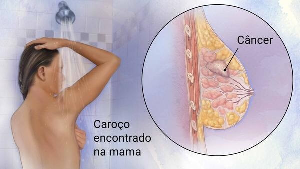 """Mastologista em Curitiba: A imagem mostra, em sua metade esquerda uma mulher realizando o auto exame de mamas durante o banho, com a frase """"Caroço encontrado na mama"""" abaixo de um de seus braços. Enquanto a metade direita mostra, dentro de um círculo, em visão aumentada como seria o interior de uma mama com câncer."""