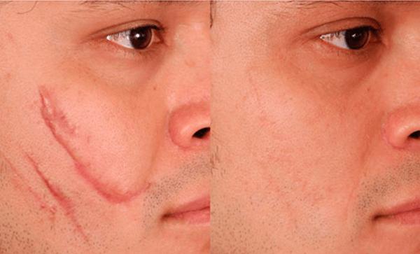 Microagulhamento em Curitiba: Comparação de Antes e Depois de um paciente que passou pelo procedimento. É notável a diminuição das cicatrizes destacadas na primeira imagem, assim como na qualidade da pele do mesmo.