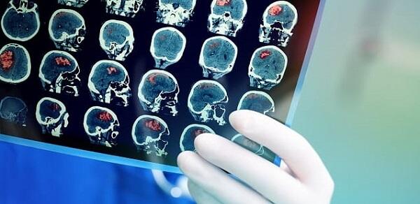 Neurologista em Curitiba: Fique atendo aos sinais que demandam uma consulta com este médico.