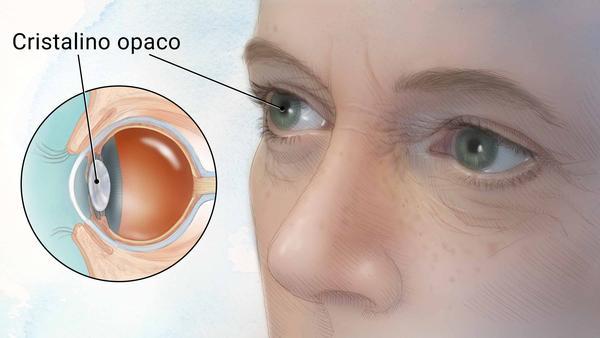 Oftalmologista em Curitiba: A catarata é uma doença crônica mas que pode ser tratada