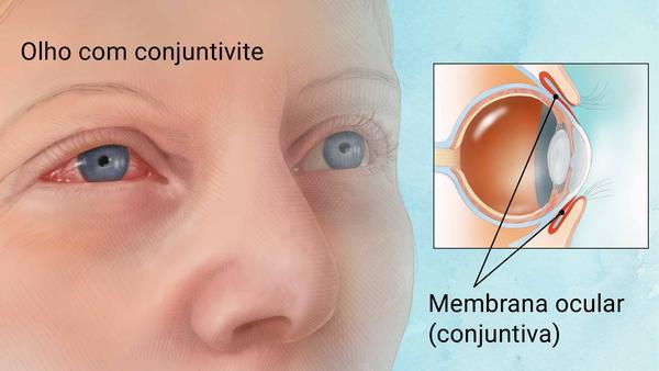 Oftalmologista em Curitiba: A conjuntivite se propaga facilmente, mas, com o tratamento adequado, a condição pode se resolver em poucos dias.