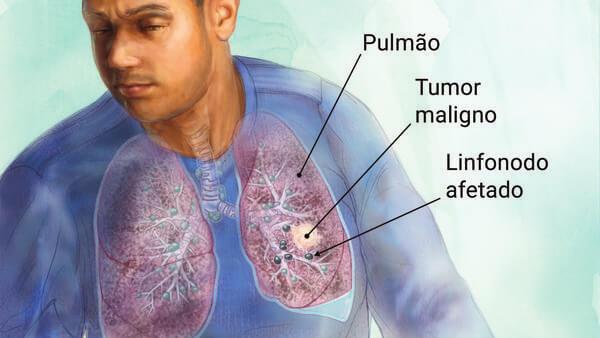 """Oncologista em Curitiba: A imagem mostra um homem adulto, com seus pulmões visíveis através de sua caixa torácica. A partir do pulmão, três linhas pretas ligam as palavras da legenda à suas respectivas representações. De baixo para cima elas são: """"Pulmão"""", """"Tumor Maligno"""" e """"Linfonodo Afetado""""."""
