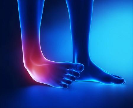 Ortopedista em Curitiba: A imagem mostra o momento de uma torção de tornozelo, com o pé direito virado para dentro e área afetada destacada em vermelho, mostrando quais nervos são afetados no momento da lesão.