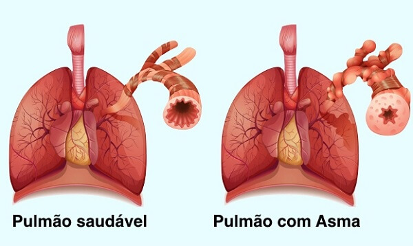 Pneumologista em Curitiba: Comparativo de um pulmão saudável e um com asma