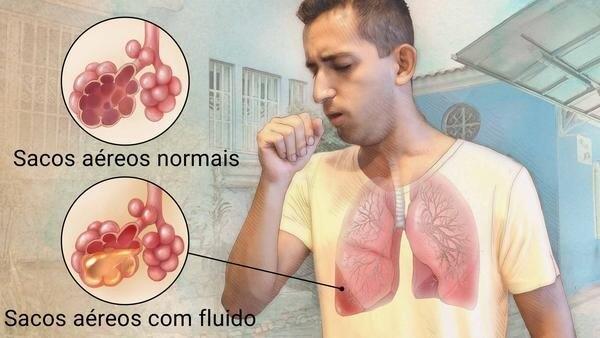 Pneumologista em Curitiba: Comparação de sacos aéreos do pulmão com e sem fluidos causados por pneumonia