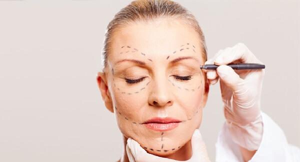Preenchimento Facial em Curitiba: Um profissional médico especializado se encontra realizando as marcações necessárias no rosto de uma paciente para a realização das inserções.