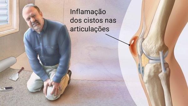 """Reumatologista em Curitiba: A imagem mostra um homem adulto, ajoelhado com ambas as mãos segurando o joelho esquerdo, em expressão de dor. Ao seu lado, a frase """"Inflamação dos cistos nas articulações"""", lihada por uma linha preta à uma imagem ampliada de um joelho, na qual é possível se ver os ossos da patela, as cartilagens e o cisto inflamado, em tons de vermelhidão."""