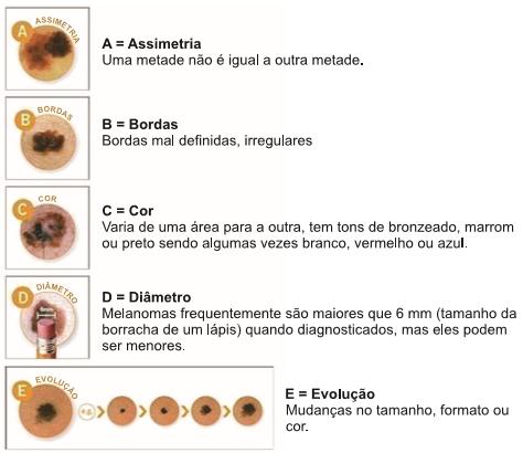 Incórpore: Tipos de melanoma
