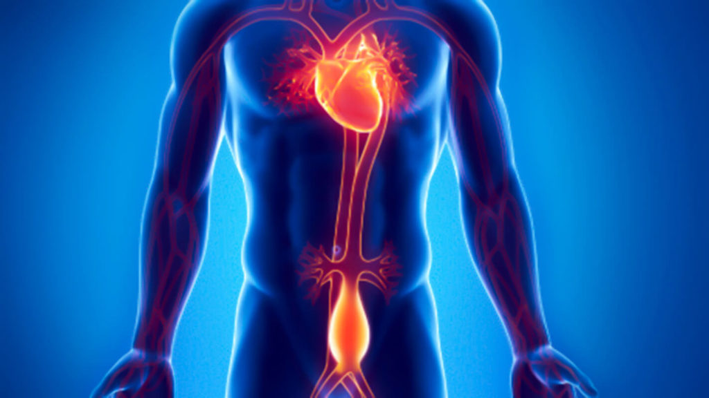 Angiologista em Curitiba: Aneurisma da aorta